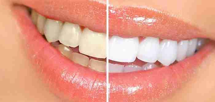 طرق طبيعية مجربه لأسنان ناصعه البياض